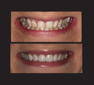 Amy S Before and After Teeth x