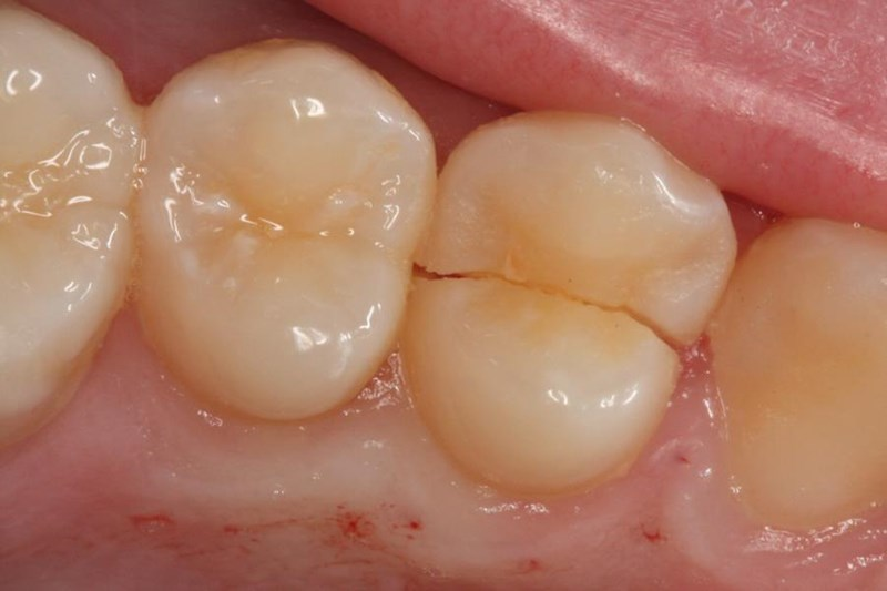What Is A Cracked Tooth?