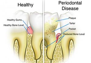 Gum Disease & Inflammation